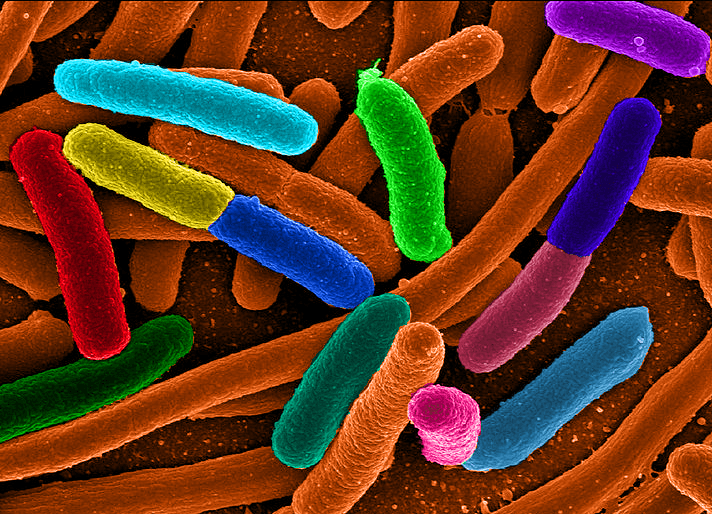 E. Coli Could Generate Biodiesel to Completely Replace Petro-Diesel